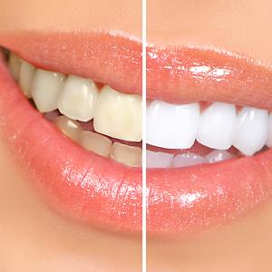 Izbjeljivanje zubi_blog_2